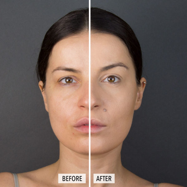 skin perfect comparación